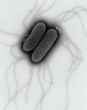 UK Scientists Find Glucose Fuels Salmonella's Attack on Human Gut