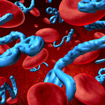 Ebola Virus Disease Important Aspects For The Food